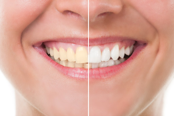 Comparison image showing one side of womans mouth with whiter teeth